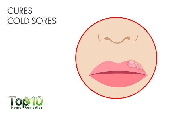 Use camphor to treat and cure cold sores