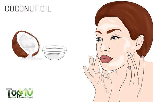coconut oil to heal pregnancy acne