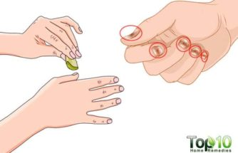 Home Remedies for Nail Psoriasis
