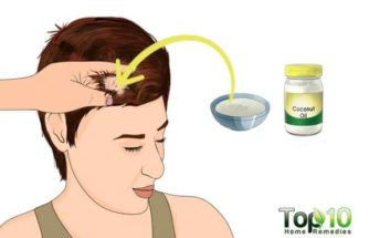 How to Treat Scalp Sores
