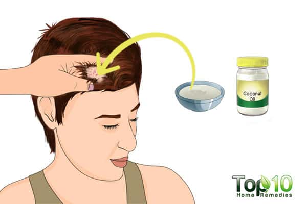 How to Treat Scalp Sores Using Home Remedies