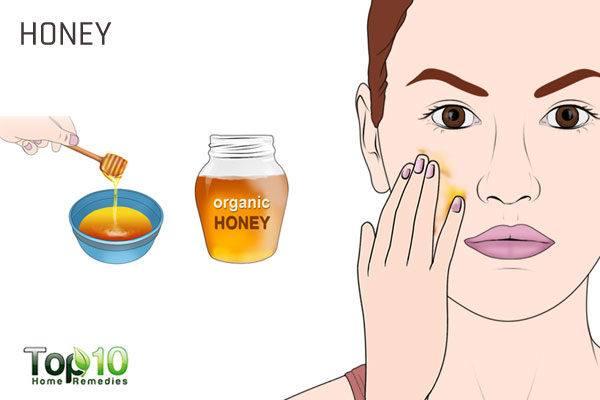 honey to fix pregnancy acne