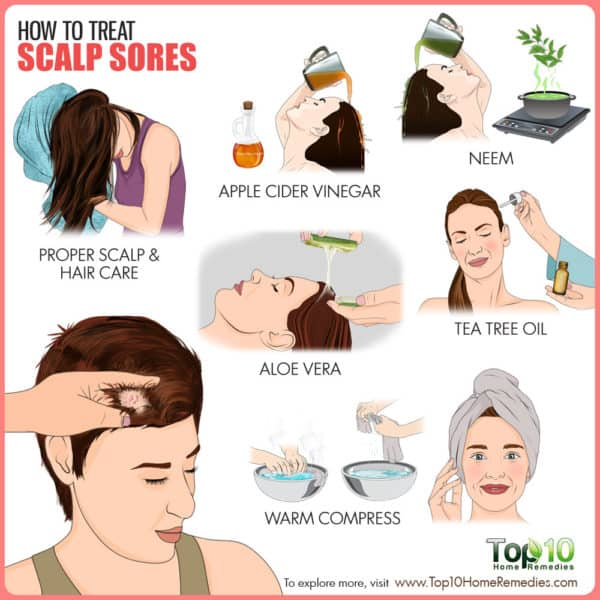 How to treat scalp sores