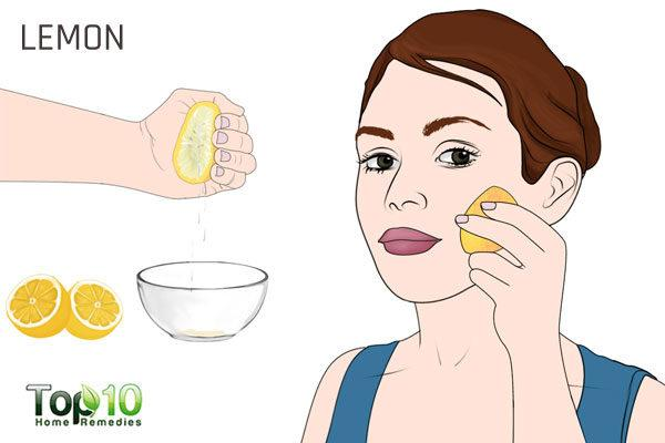lemon to treat acne during pregnancy