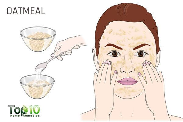 oatmeal to treat acne during pregnancy