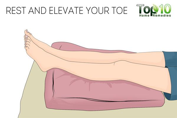 Rest and elevate your foot to treat a sore big toe