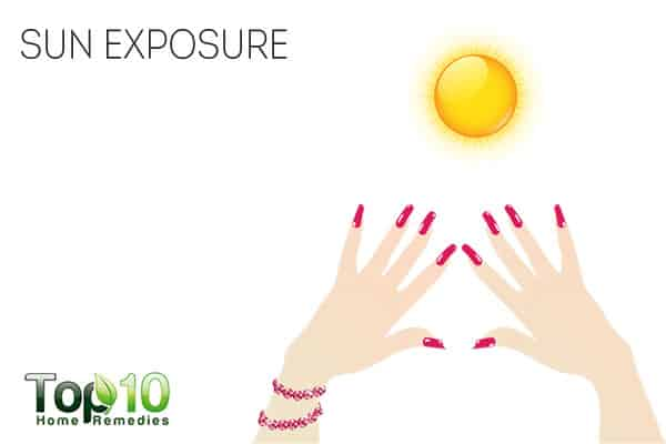 Sun exposure for nail psoriasis