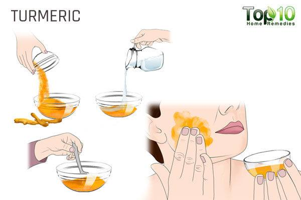turmeric to treat acne in pregnancy