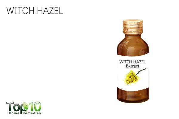 Witch hazel to treat sweaty hands