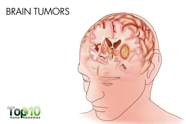 brain tumors-things your ears are trying to tell you