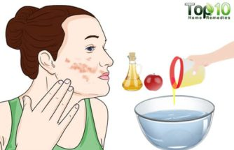 How to Deal with Winter Eczema