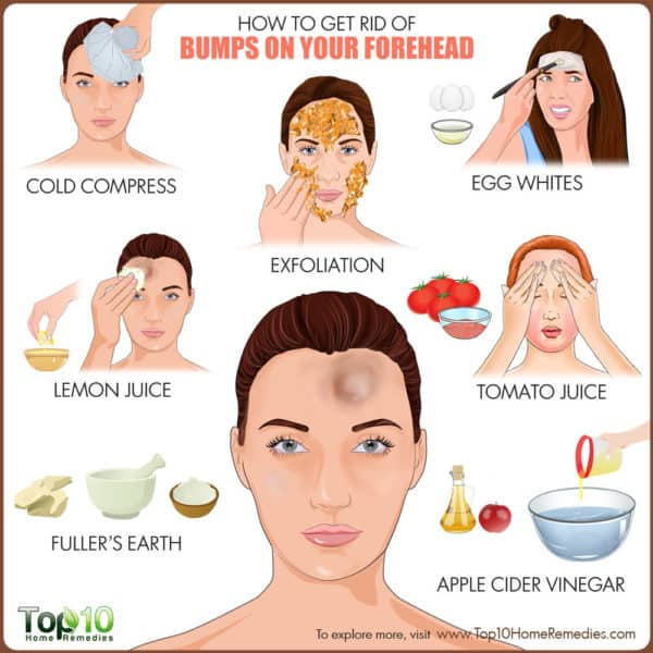 Get rid of bumps on forehead