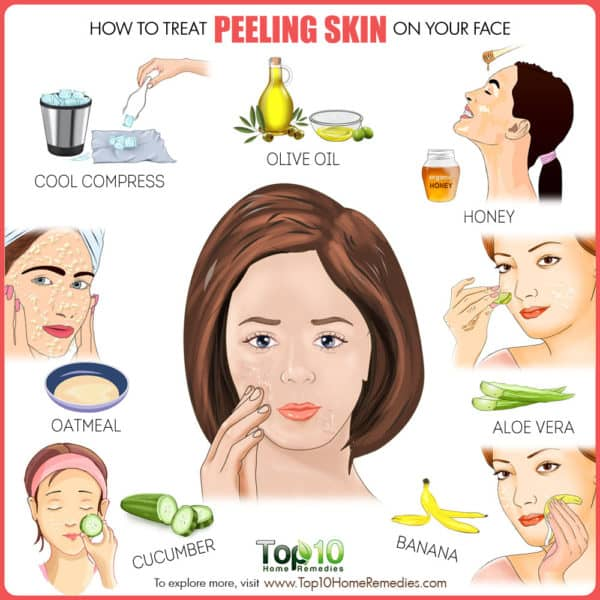 How to treat peeling skin on face