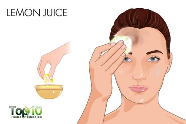 Use lemon juice for bumps on forehead