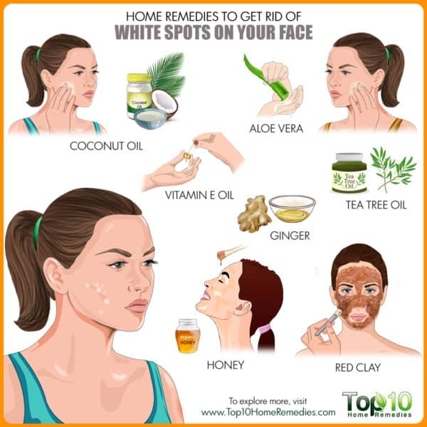 Get rid of white spots on face