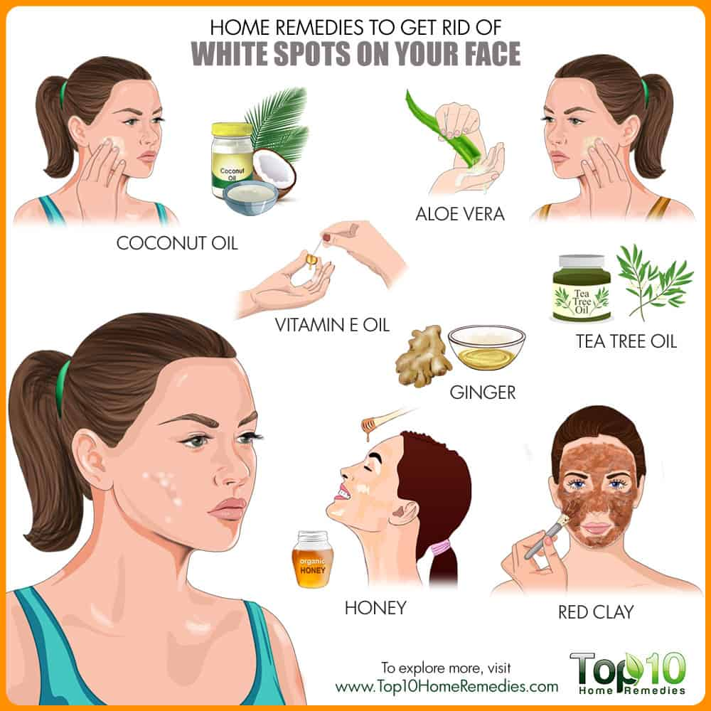 Home Remedies to Get Rid of White Spots on Face | Top 10