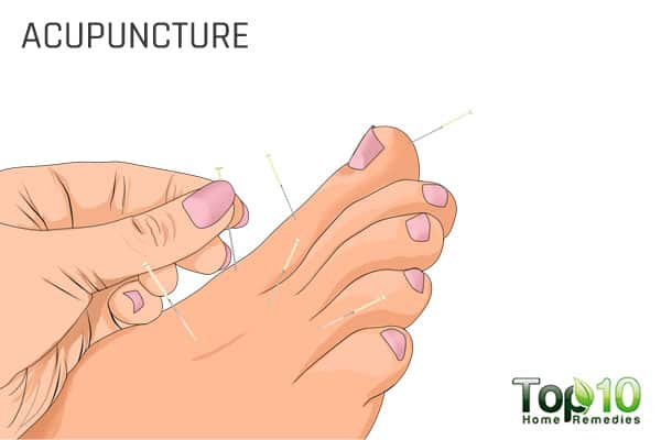 acupuncture for big toe arthritis
