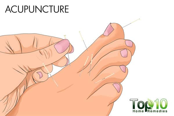 acupuncture to treat diabetic nerve pain