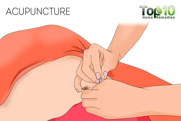 acupuncture for interstitial cystitis