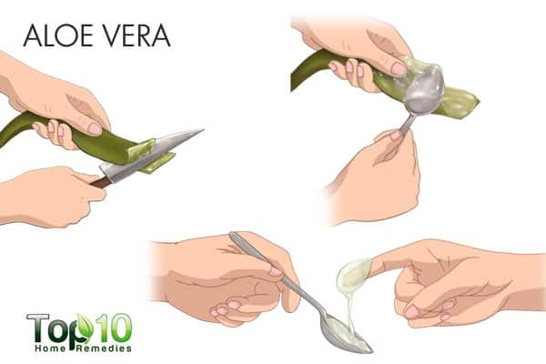 aloe vera for ringworm of the scalp