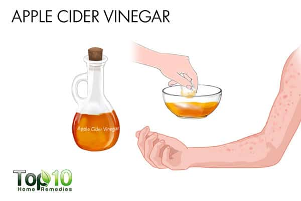 apple cider vinegar to get rid of bumps on arms