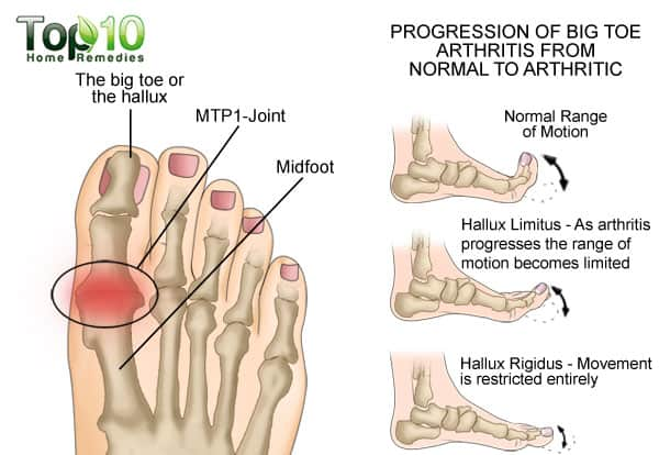 big toe arthritis diagram
