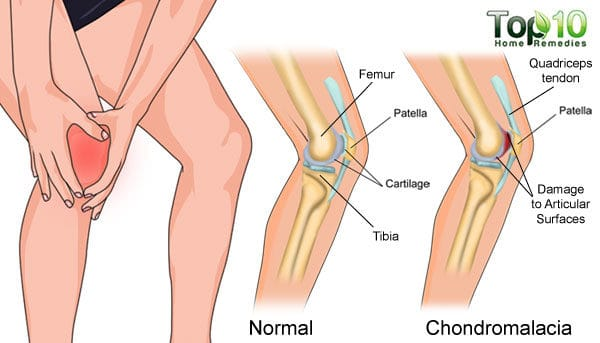 Normal bone and chondromalacia affected bone diagram