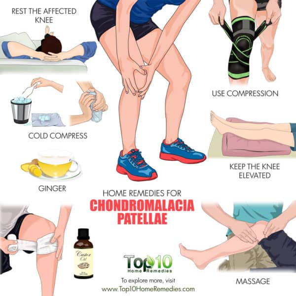 Home remedies for chondromalacia patellae