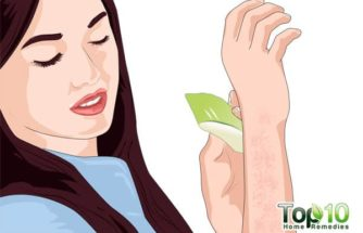 How to Get Rid of Bumps on Arms