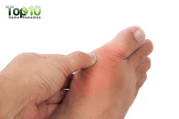 discover home remedies for big toe arthritis