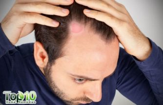 Home Remedies for Ringworm of the Scalp