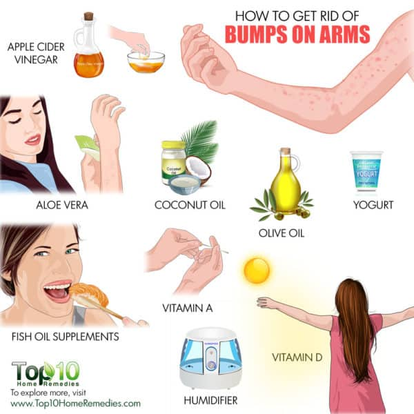 get rid of bumps on arms