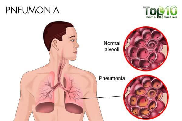 pneumonia causes rapid shallow breathing