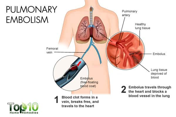 pulmonary embolism causes rapid shallow breathing