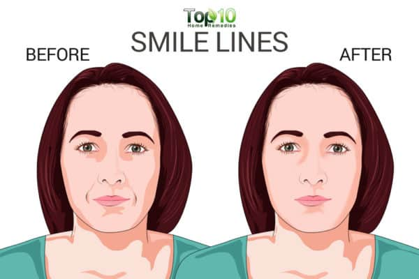 smile lines-before-after