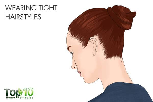 wearing tight hairstyles can ruin your hair