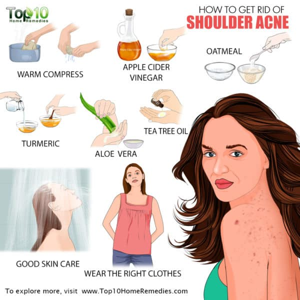 Image how to get rid of shoulder acne
