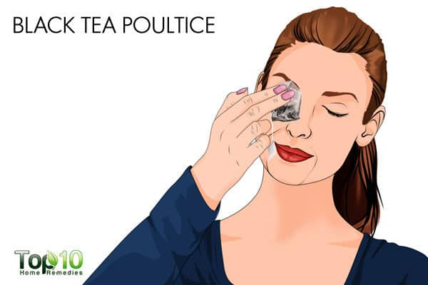 blak tea poultice treatment for allergic conjunctivitis
