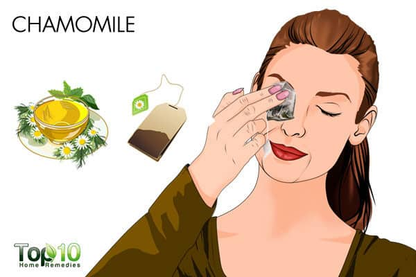 chamomile remedy for allergic conjunctivitis