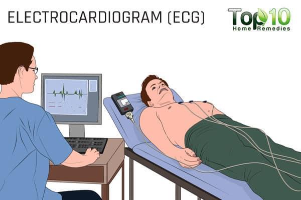 electrocardiogram ECG test