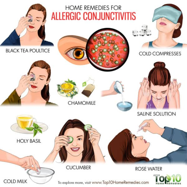 home remedies for allergic conjunctivitis