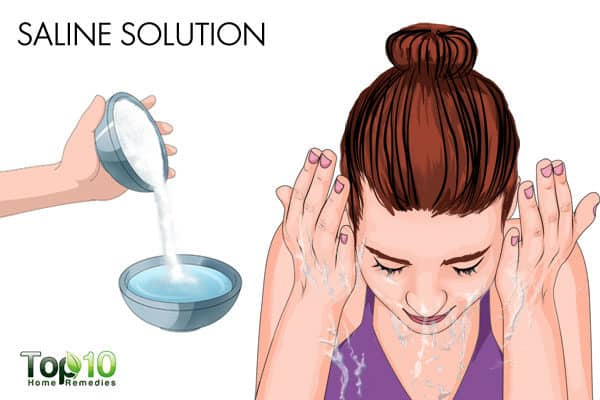 saline solution for allergic conjunctivitis