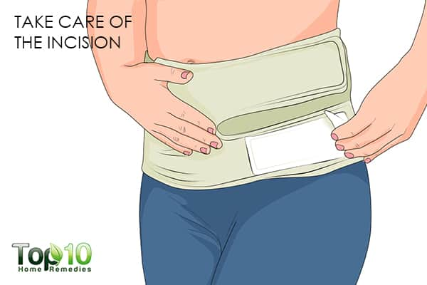 take care of the incision to recover faster after a C-section