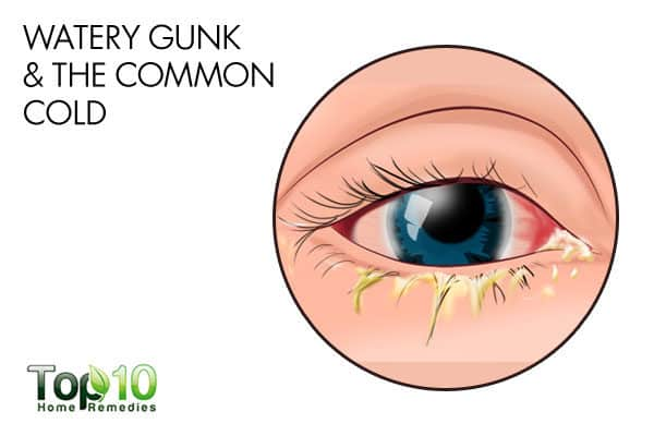 watery eye gunk and common cold