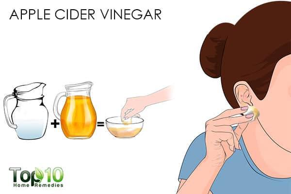 apple cider vinegar for pimples on the ear