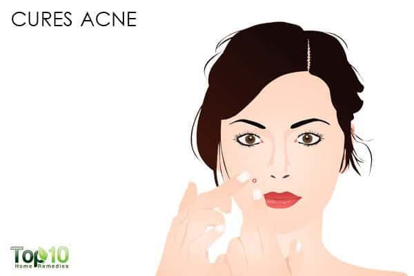 calamine lotion cures acne