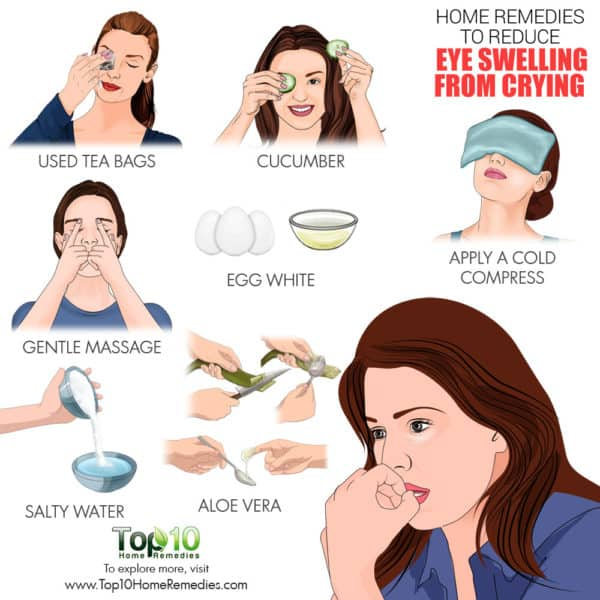 home remedies reduce eye swelling after crying
