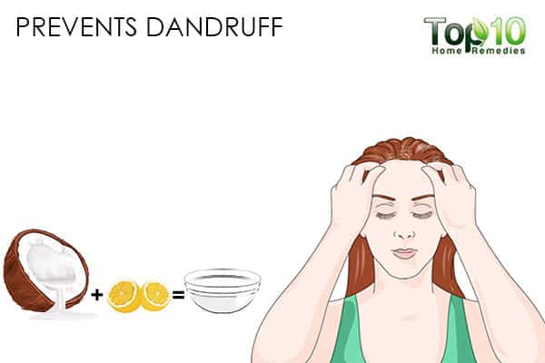 prevents dandruff benefits of using coconut oil on hair