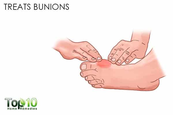 treats bunion benefits of canlendula flowers