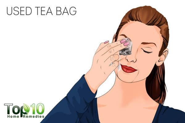 tea bags to reduce eye puffiness after crying